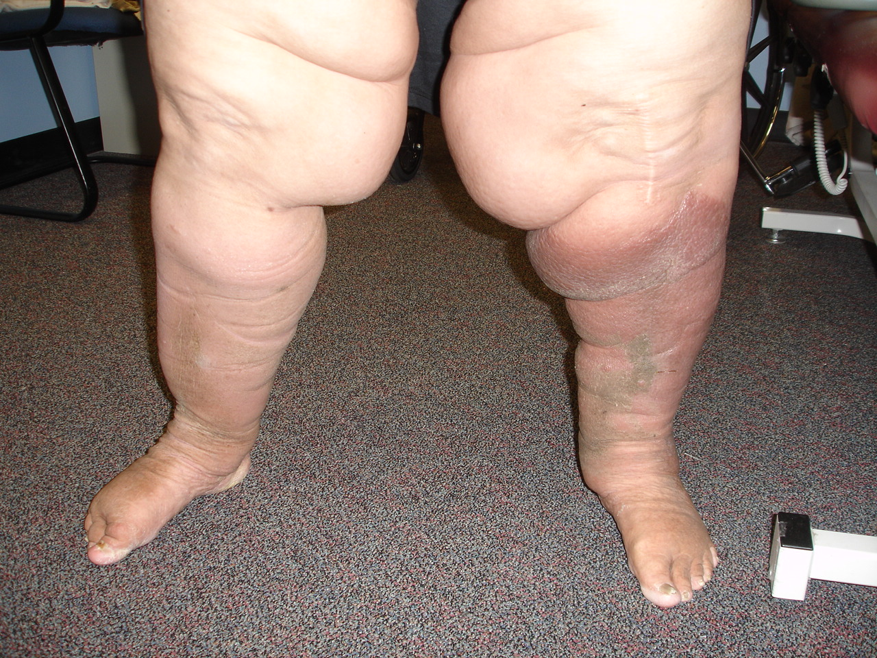 Lymphostasis of the lower extremities: causes. How to treat lymphostasis of the lower extremities 94